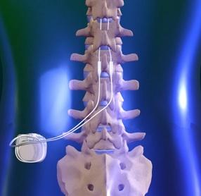 SCS-implant