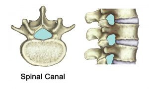 spinal_canal
