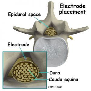 spinal_stim_devices